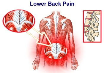 Low-Back-Pain-Diagram