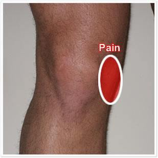 Knee-Pain-Medial-Ligament