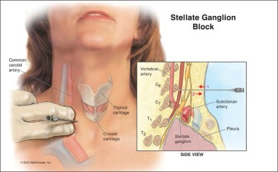 Stellate-Ganglion-Block-Explained