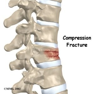 Compression-Fracture