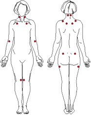 Fibromyalgia Points