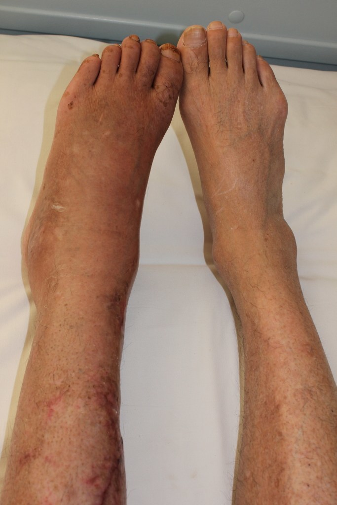 Complex-Regional-Pain-Syndrome-Legs