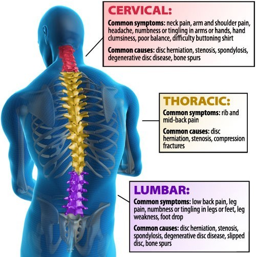back-pain-diagram