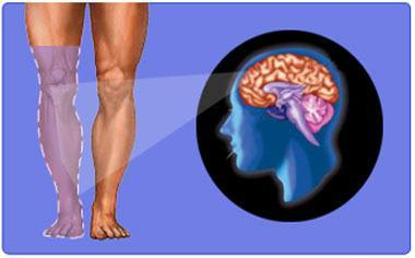 Phantom-Limb-Pain-Brain
