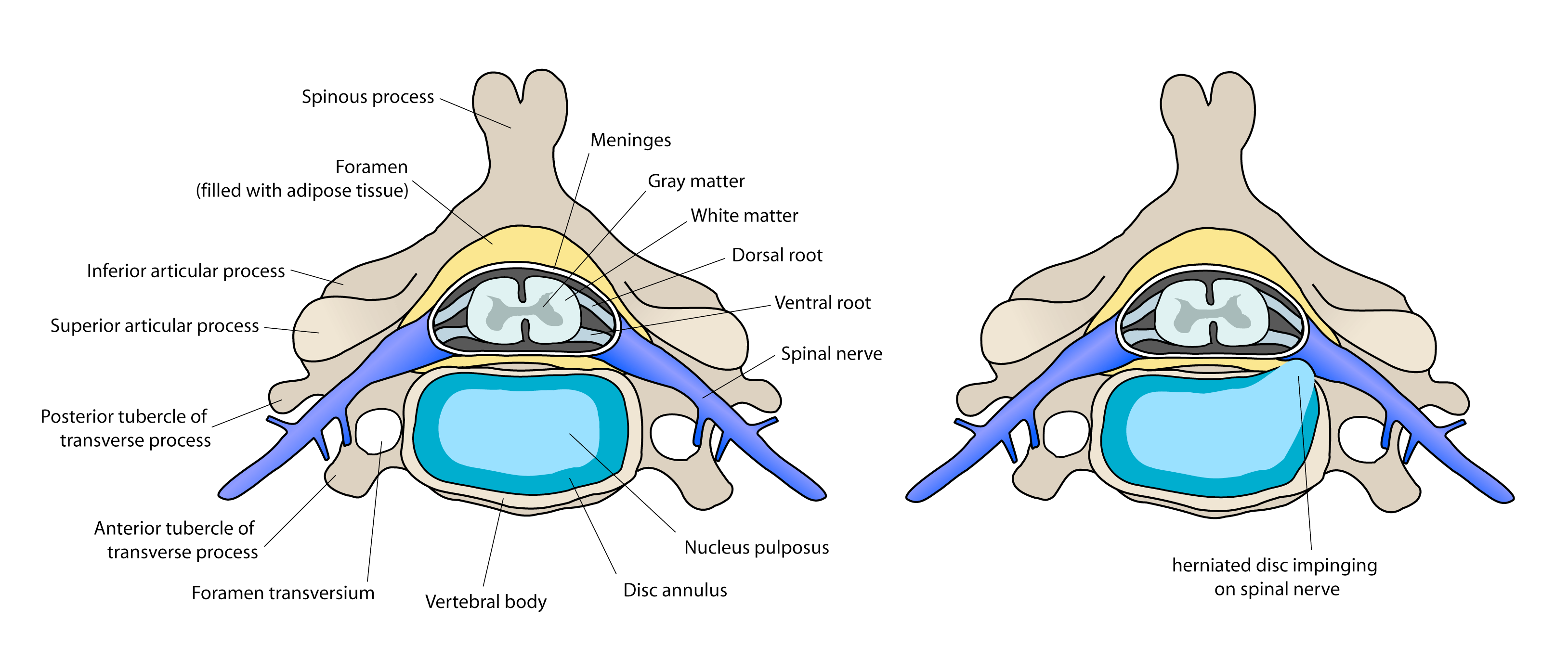 Prolapsed Disc Drawing Diagram