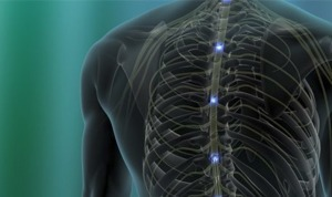 Arizona Pain Spinal Stenosis Study