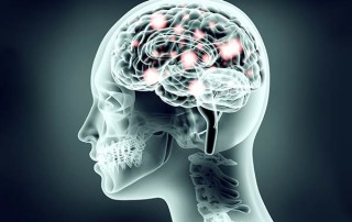 Opioid Induced Hyperalgesia: A Counterintuitive Finding of Pain Medicine   ArizonaPain.com
