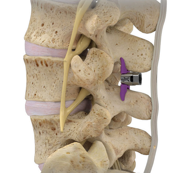 Newly FDA-Approved VertiFlex Superion Offers Back Pain Relief   ArizonaPain.com