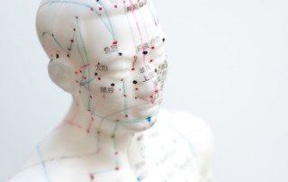 Should I Try Acupuncture For Headaches? | ArizonaPain.com