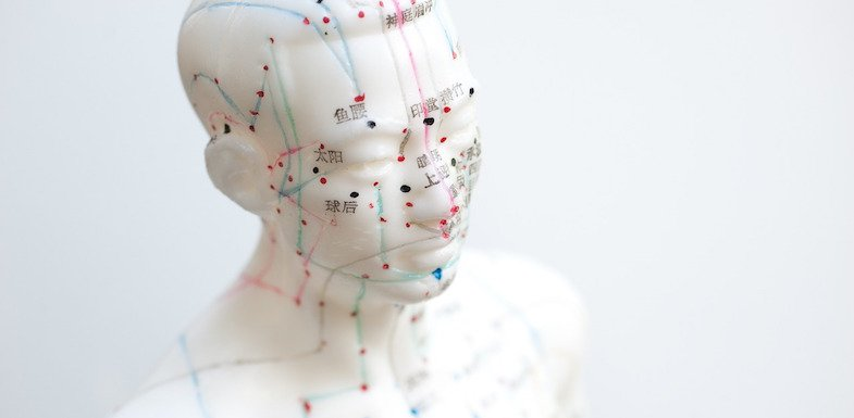 Should I Try Acupuncture For Headaches?   ArizonaPain.com