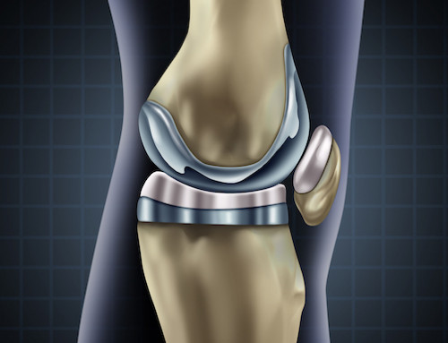 How Long Does Pain Last After Knee Replacement Surgery? What To Expect