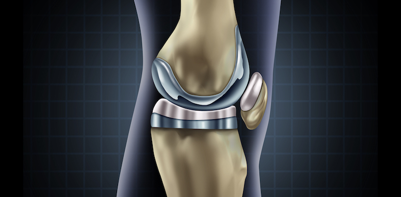 How Long Does Pain Last After Knee Replacement Surgery? What To Expect | Arizona Pain