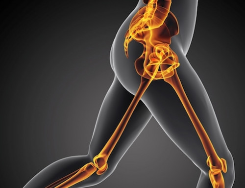 What Is Hip Bursitis And How To Treat It