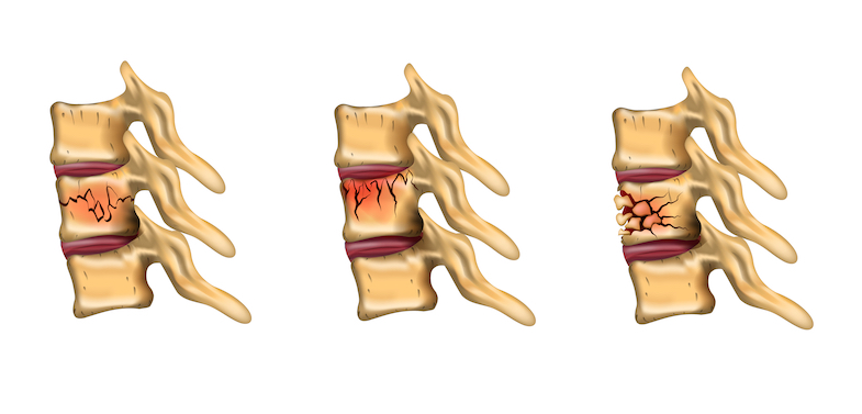 types of compression fracture graphic