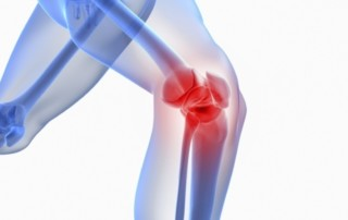 How Can A Genicular Nerve Block Help With Knee Pain? || Arizona Pain